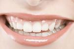 牙齿美容加盟店 如何做好产品促销
