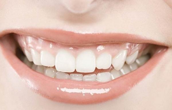 牙齿美容加盟店 如何做好产品促销_1